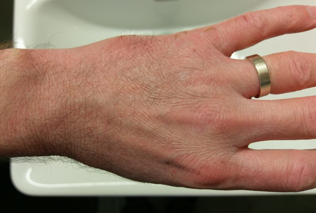 "Extremely dry Hands, caused by liquid ""soap"""